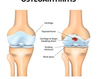 image of healthy knee vs knee with osteoarthritis